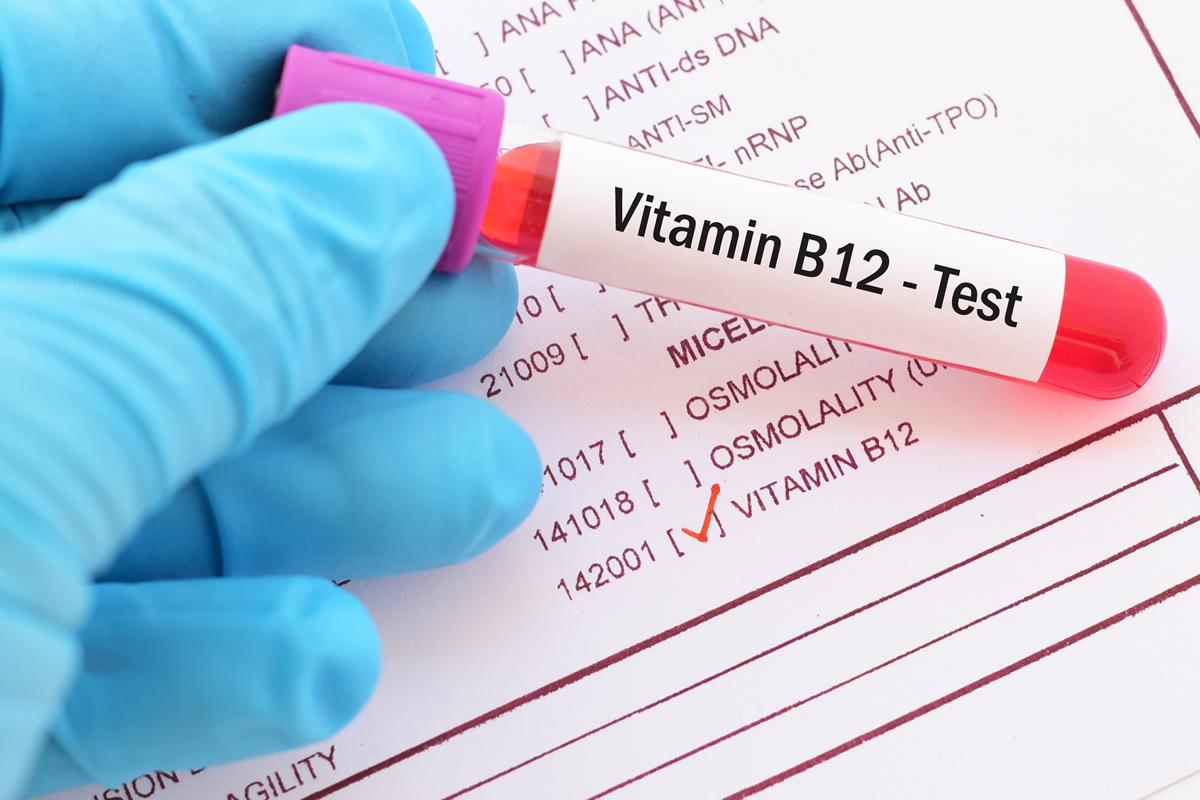 Carenza vitamina B12