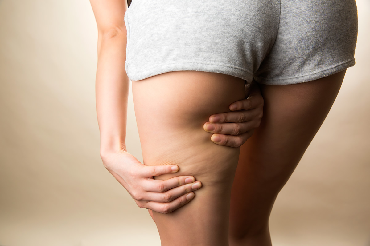 cellulite cosa è come curarla